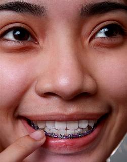 Evolution of braces