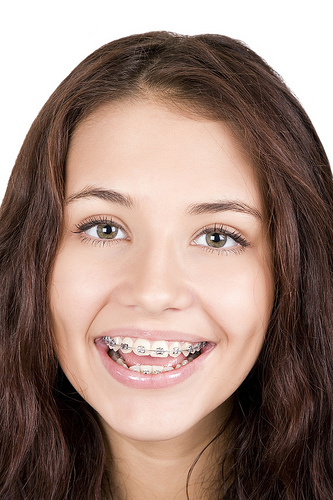 Orthodontic braces teen smiling