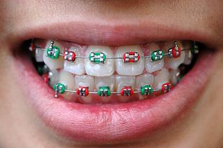 Coloured bands, braces