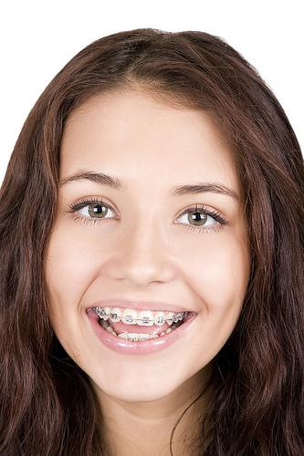 Orthodontic braces teen smiling